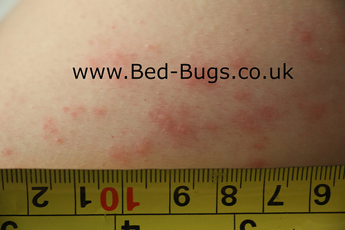 Bed Bugs Limited -  bedbug bites
