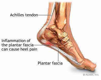 b655862468cd9 Heel Pain - Associated Podiatrists