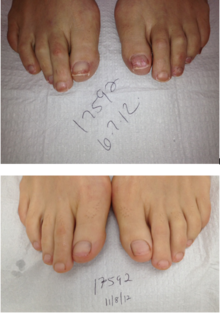 Laser Toenail Fungus Treatment - Associated Podiatrists