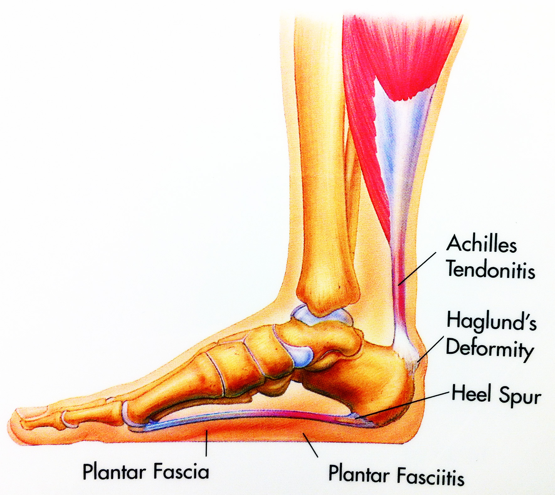 Plantar Fascia Stretches recommendations
