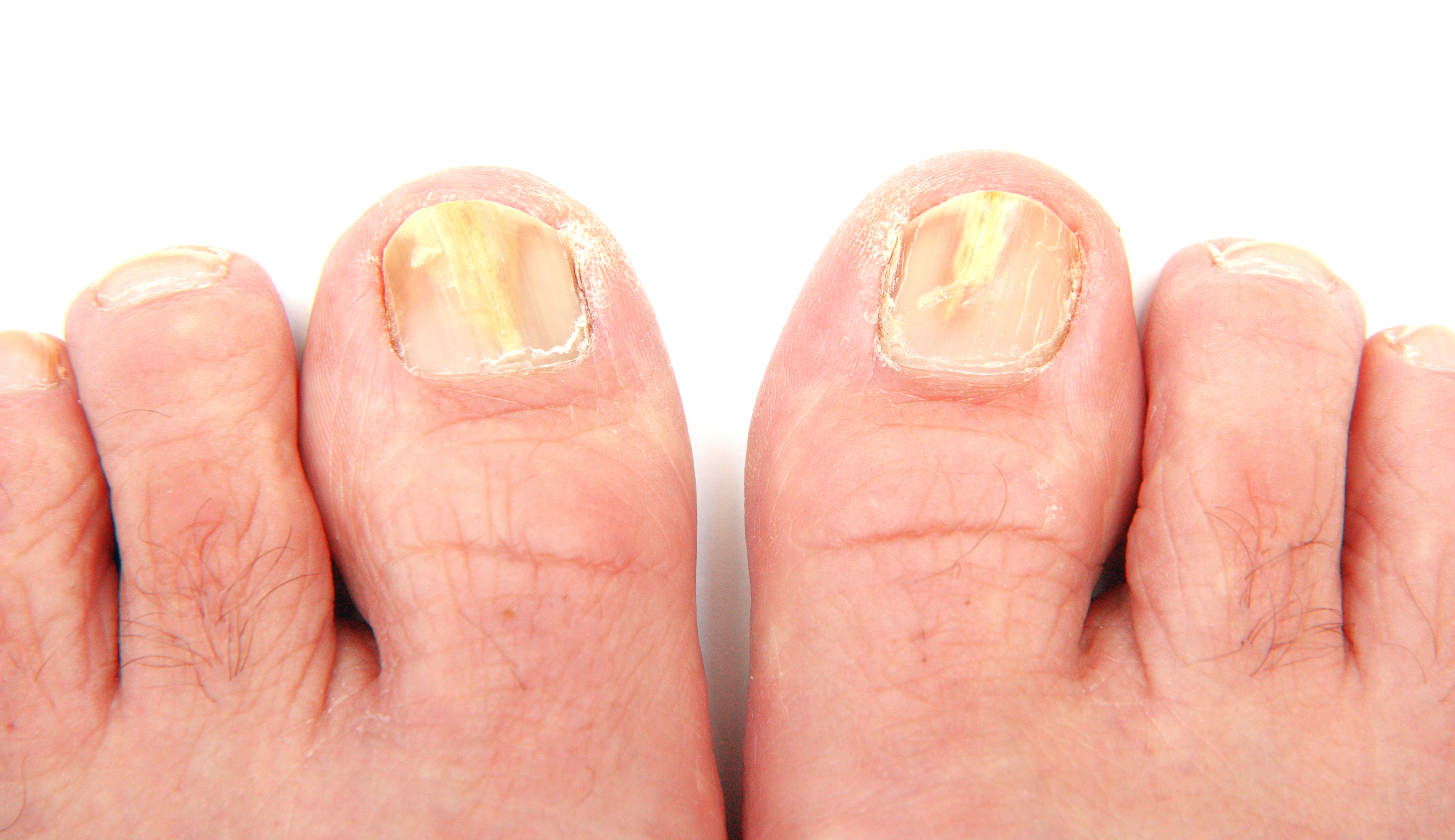 Laser Toenail Fungus Treatment - Associated Podiatrists
