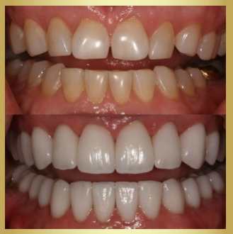 Cosmetic dentistry is offered in Ft Myers Florida to help patients achive a beautiful smile they are proud of!