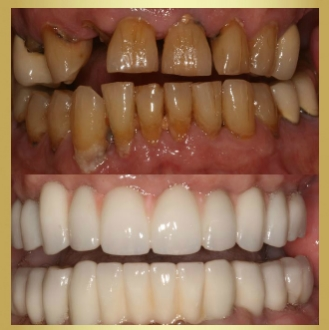 Restorative dentistry offered in Ft Myers Florida allows patients to restore their natural teeth affected by decay or disease.